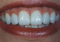 Cosmetic Dentists Wellington