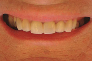 Composite-crowns-a