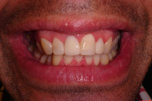 Compositedentalveneers1bb
