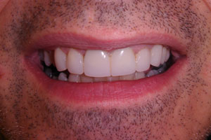 Wellingtons best cosmetic dentists