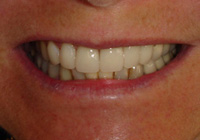 Dentalcrowns2