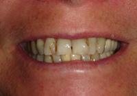 Dentalcrowns3