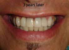 Mini-Implants-3-yrs