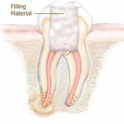 Root Canals - Wellington Dentists - Root Canals Wellington