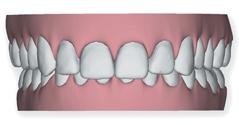 braces 4