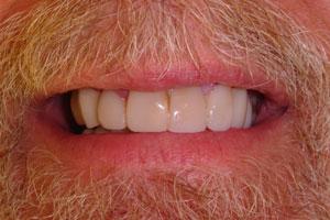 cosmetic-dentist-22a