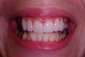 Cosmetic dentists fixing crooked teeth in wellington