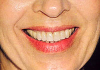 dental-Crowns-10