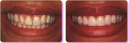 dental-Crowns-14