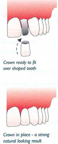 dental-Crowns-15