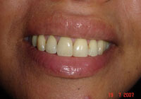 dental-Crowns-7