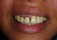 dental-Crowns-9