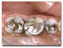 dental-Crowns2