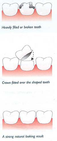 dental-cowns-3