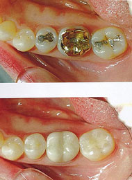 dental-crown-2