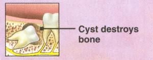 wisdom teeth removal 3
