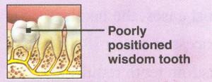 wisdom teeth removal 4