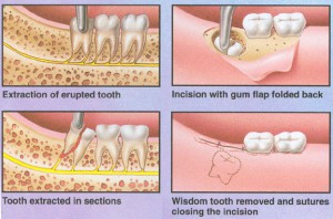 wisdom teeth removal 6