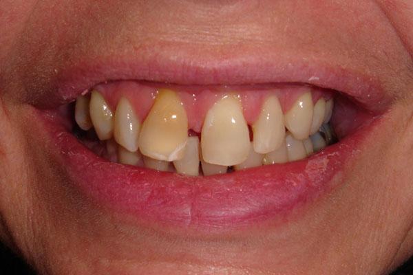 Wellington Cosmetic Dentists - Composite Veneer specialists